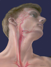 Carotid artery medical drawing