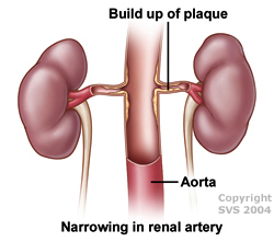 Build up of plaque, narrowing in renal artery