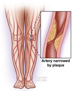 Artery Narrowed by Plaque