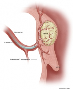 Infusion of particles into fibroid